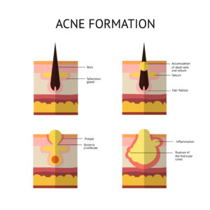 how does acne form, what causes acne